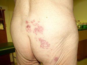 Gürtelrose. Herpes Zoster
