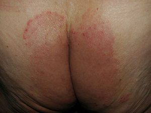 Tinea (Hautpilz) am Gesäß