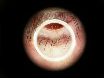 Ein pigmentiertes Basaliom (Heller Kautkrebs) am Lidrand. Dermatoskopisches Bild.