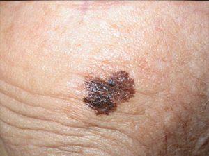 Die Lentigo maligna. Schwarzer Hautkrebs meist bei älteren Patienten in Sonnenexponierten Arealen