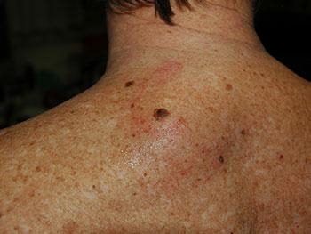 Ein Melanom. Hier typisch unterhalb des Nackens bei einem Mann