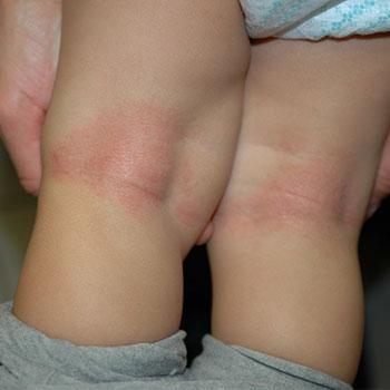 Atopische-Dermatitis